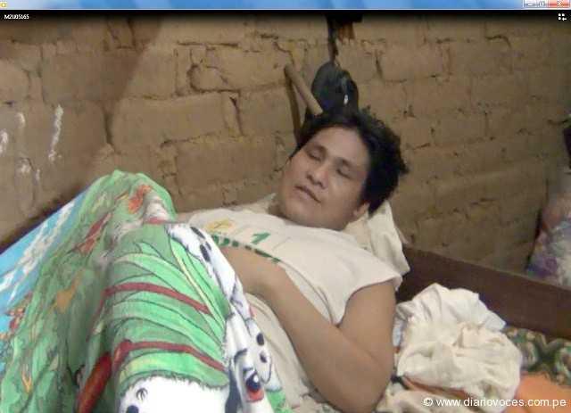 Pacientes con cáncer al pene fueron trasladados a Lima