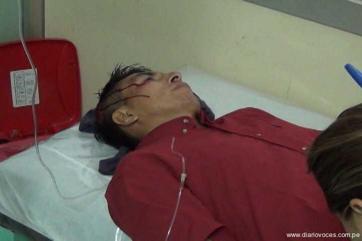 Motociclista herido no fue atendido en Hospital Regional de Tarapoto