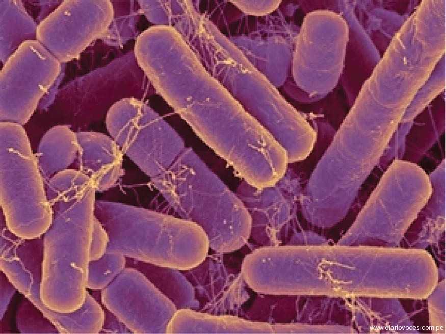 La artritis puede ser causada por bacterias intestinales