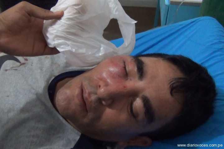 Violento desalojo de ambulantes dejó tres personas heridas