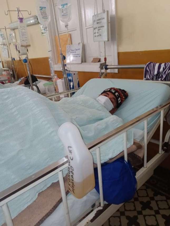 Paciente con graves quemaduras que fue trasferido Lima necesita 15 unidades de sangre