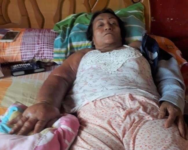 Brindan apoyo a mujer con cáncer de mama que se vio afectada por la pandemia