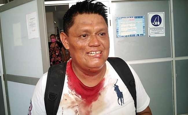 Asaltan y roban a trabajador del Proyecto Especial y Dirigente del FREDESAA