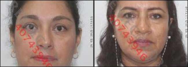 Poder Judicial ordena nueve meses de prisión preventiva contra funcionarios de la Red de Salud de Alto Amazonas