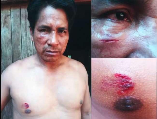 """""""Líder indígena es golpeado y amenazado de muerte tras denunciar actividades ilegales en su territorio"""""""